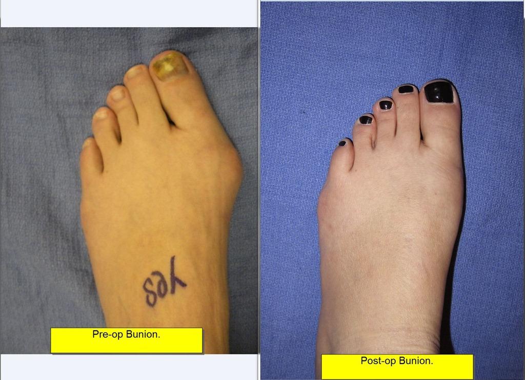 Περιστατικό με κότσι πριν και μετά την επέμβαση
