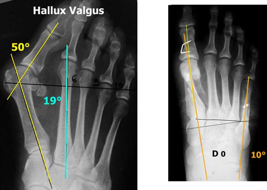 Ακτινογραφίες με κότσι πριν και μετά την επέμβαση