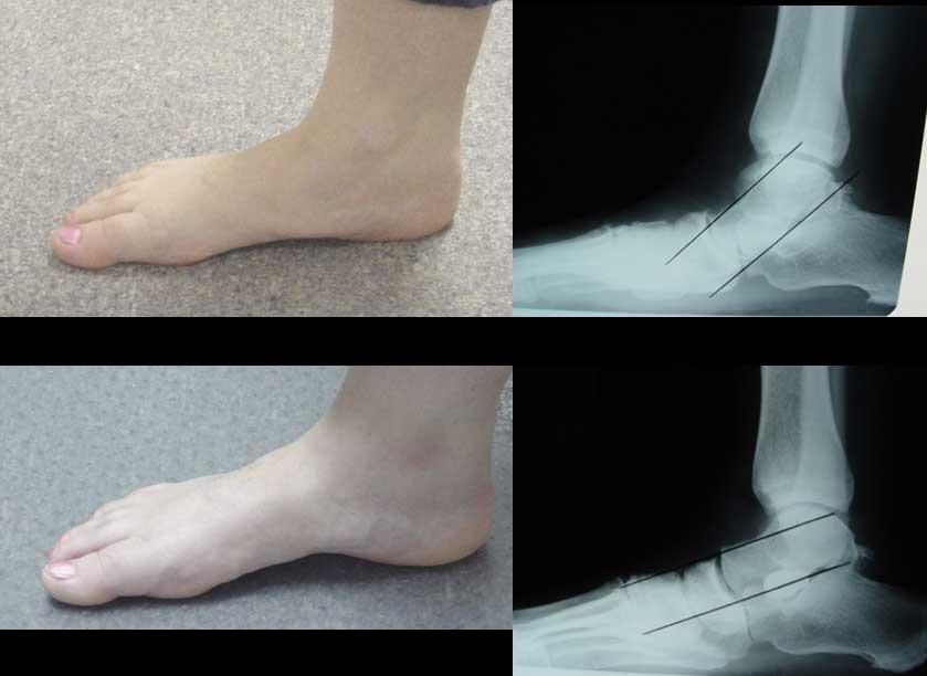 Πλατυποδία, ακτινογραφίες πριν και μετά