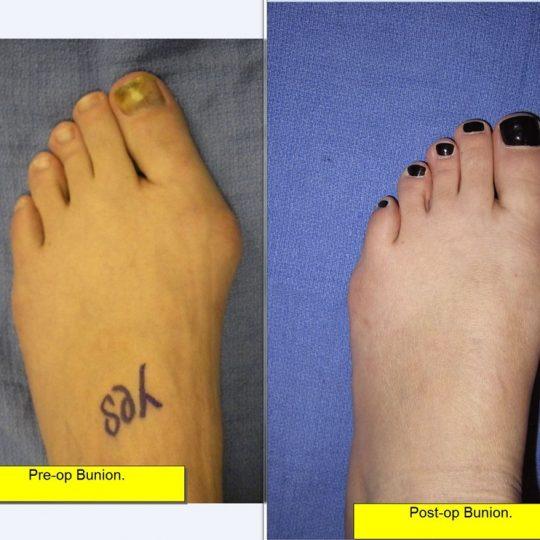 Εγχείρηση κότσι πριν και μετά, φωτογραφία
