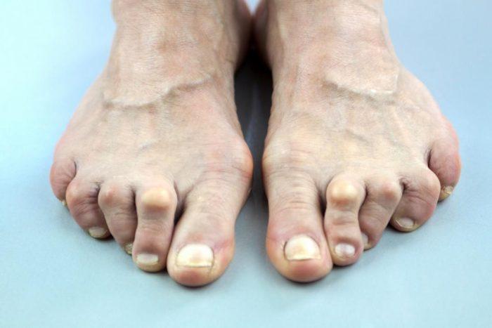θεραπεια-για-παραμορφωση-δαχτυλων-ποδιων-e1603971820113.jpg