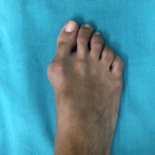 Πόδι δεξιό με στραβό κότσι