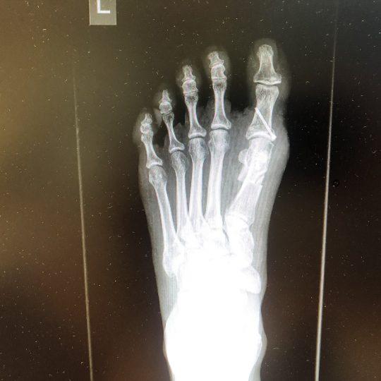 Ακτινογραφία πριν την επέμβαση, αριστερό πόδι
