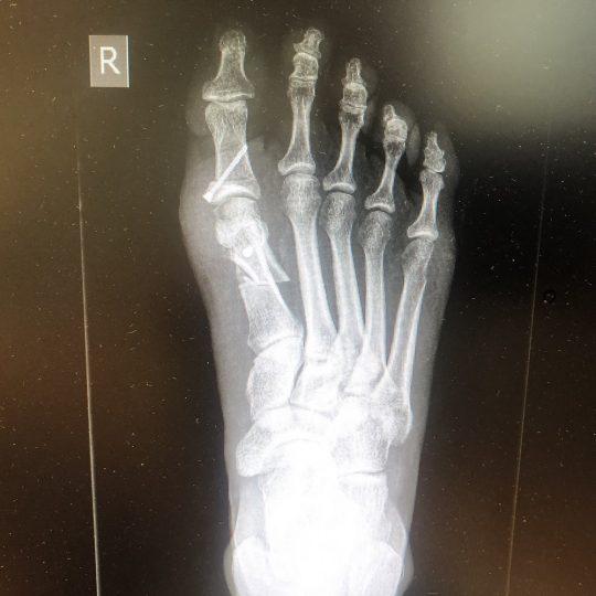 Ακτινογραφία πριν την επέμβαση, δεξί πόδι