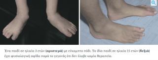 Παιδί χωρίς πλατυποδία στα πόδια