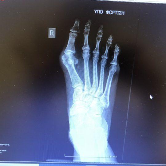 Δεξί πόδι, ακτινογραφία πριν την επέμβαση