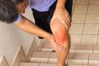 Ρευματοειδές πόδι σε άνδρα