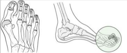 arthritida-podi.png