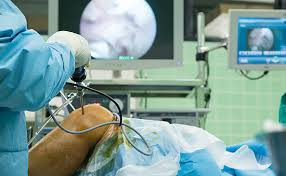 Αρθροσκόπηση χειρουργείο
