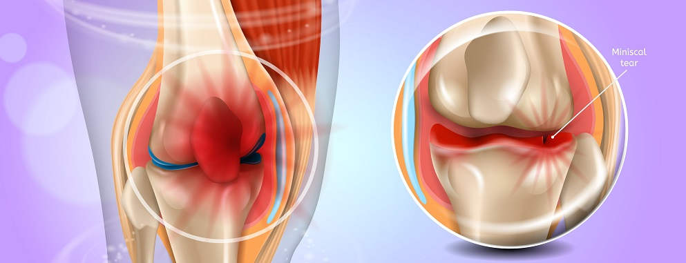 Τρισδιάστατο μοντέλο ανατομίας γόνατος