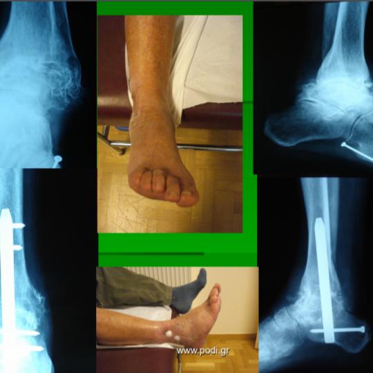 Πόδι ρευματοειδές ανδρικό