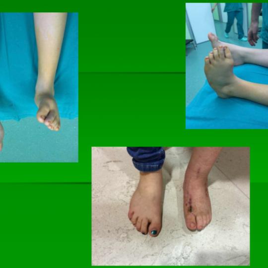 Γυναίκες με στραβά πόδια