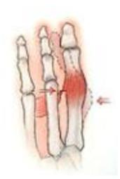 Bunion Surgery 6