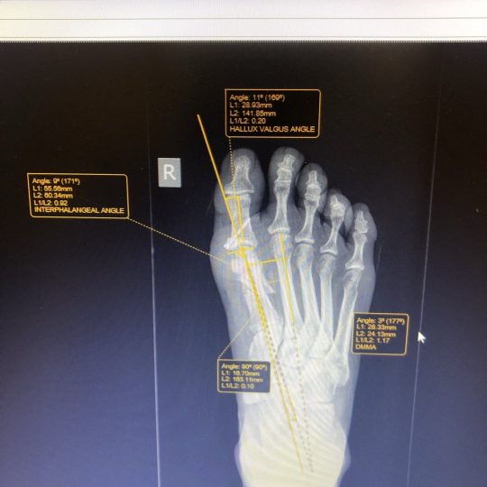 Ακτινογραφικές μετρήσεις μετά την επέμβαση, δεξί πόδι