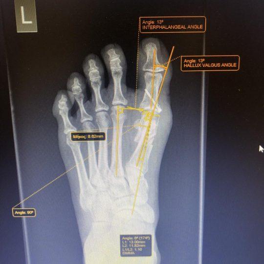 Ακτινογραφικές μετρήσεις μετά την επέμβαση, αριστερό πόδι