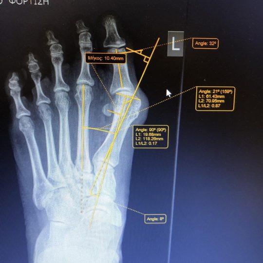 Ακτινογραφικές μετρήσεις πριν την επέμβαση, αριστερό πόδι