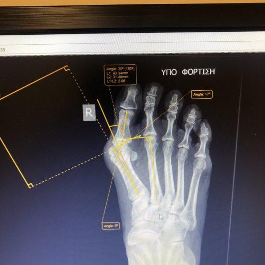 Ακτινογραφικές μετρήσεις πριν την επέμβαση, δεξί πόδι
