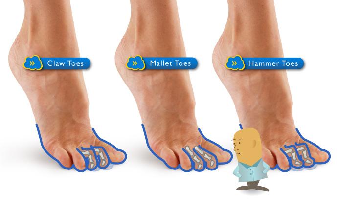 Πόδια φυσιολογικά, με γαμψοδακτυλία και σφυροδακτυλία
