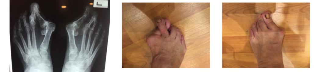 Ρευματοειδές πόδια