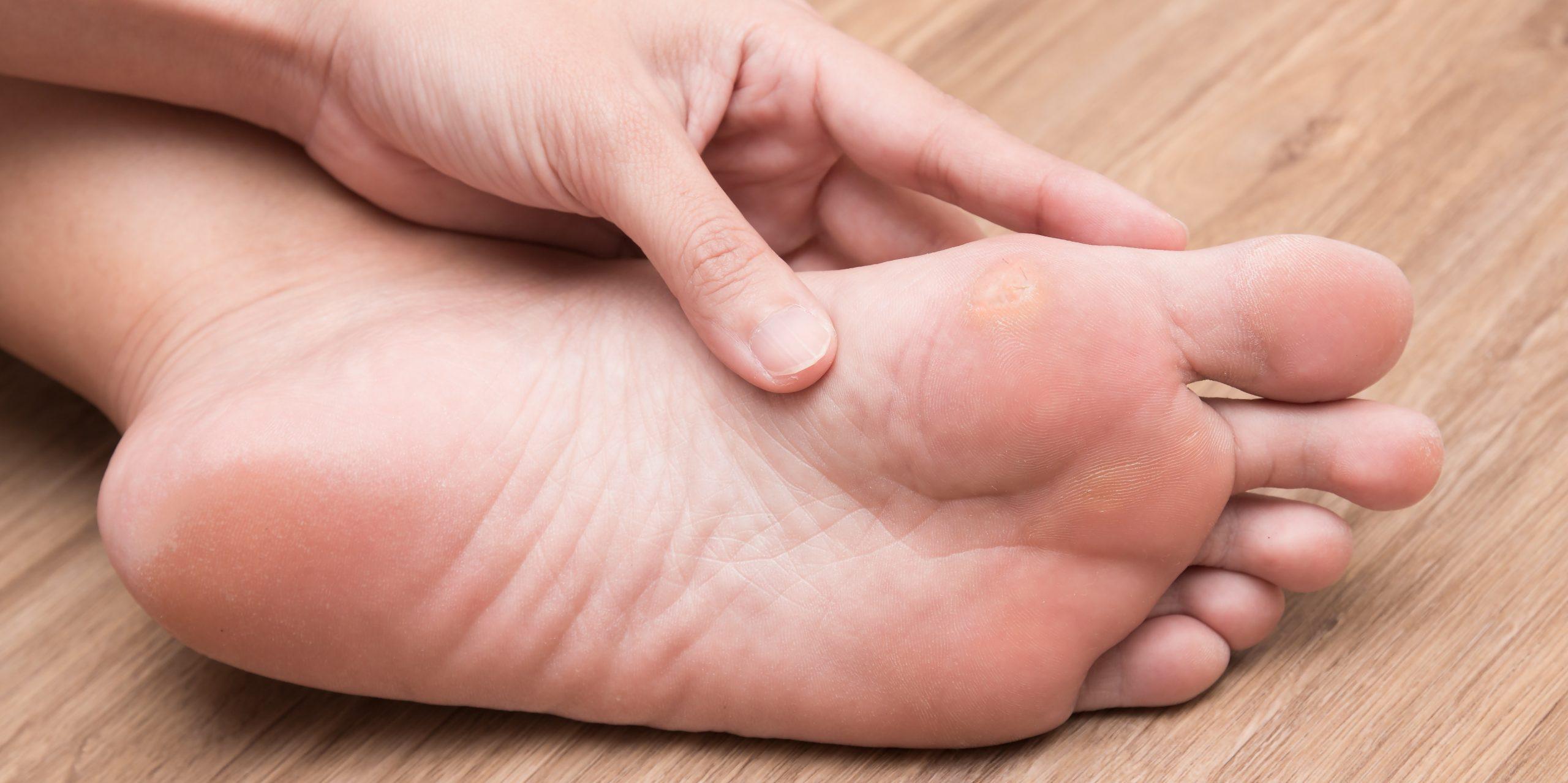 Γυναίκα που υποφέρει από κάλο στο πόδι