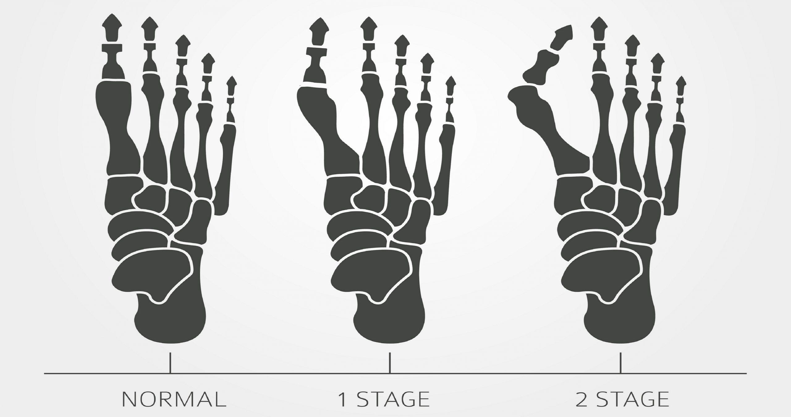 Infographic με τα στάδια του κότσι