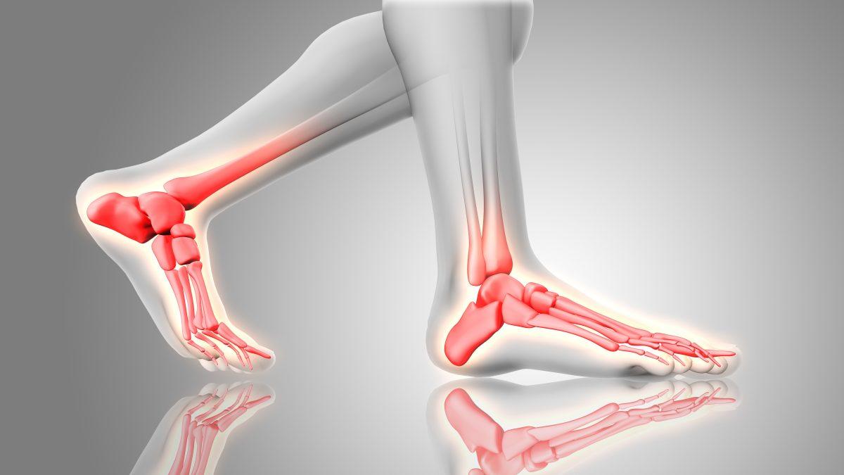 Ιατρικό μοντέλο ποδιών με μετατάρσιο σύνδρομο