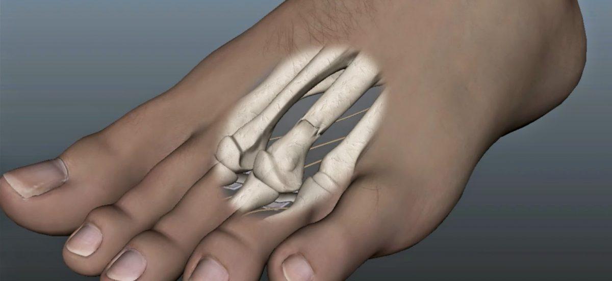 Ιατρικό μοντέλο με τον μετατάρσιο σωλήνα