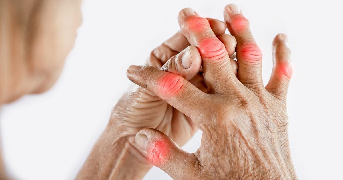 arthritida-daktyla.jpeg