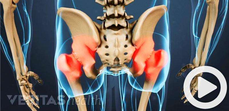 Ιατρικό μοντέλο για την οστεοαρθρίτιδα ισχίου