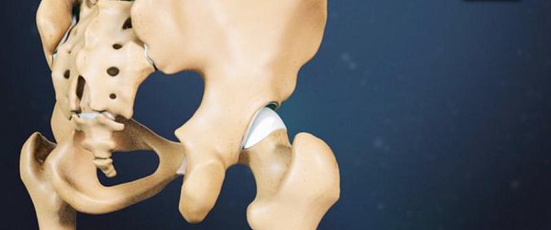 Ιατρικό μοντέλο για την οστεοαρθρίτιδα ισχίου 2