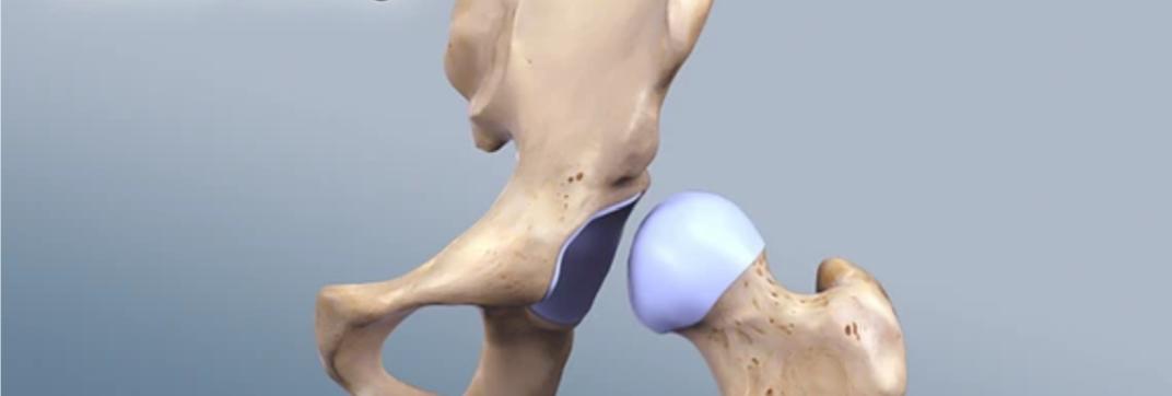 osteoarthritida-isxiou-5-1.png