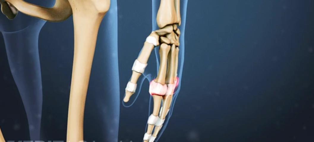 symptomata-arthritidas.png